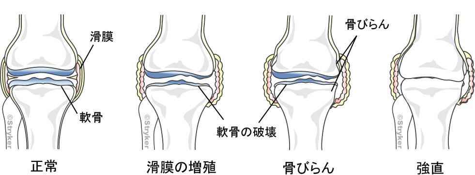 リウマチひざ変形改訂