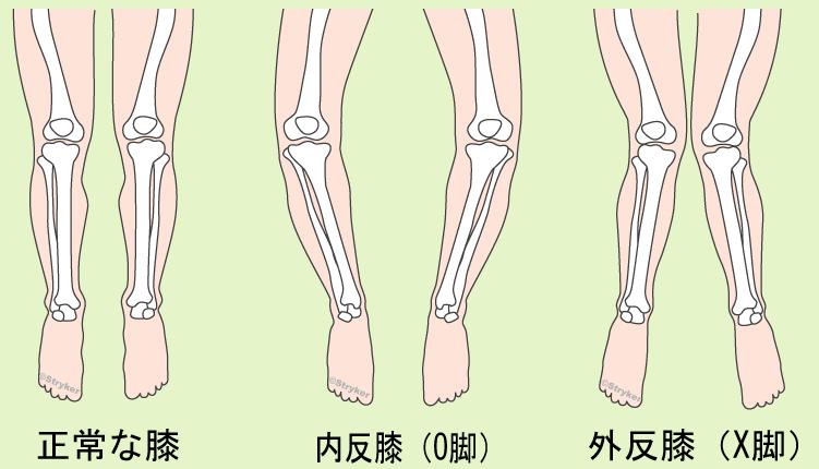 両足変形膝 背景ありc2