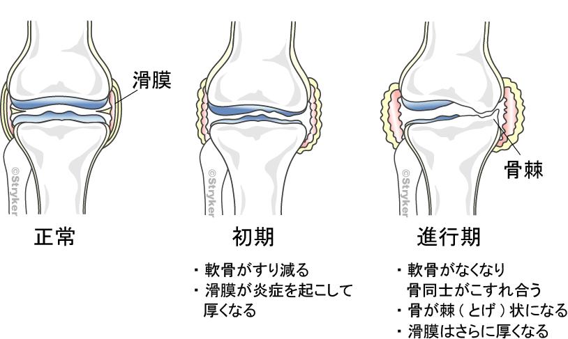 変形性ひざ関節症進行 背景ありc2