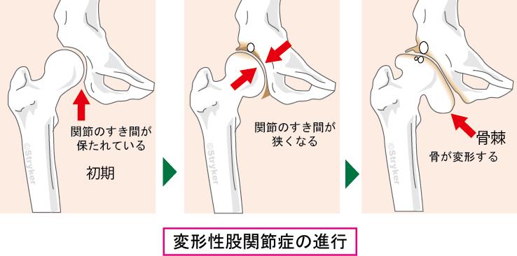 変形 性 股関節 症 ストレッチ