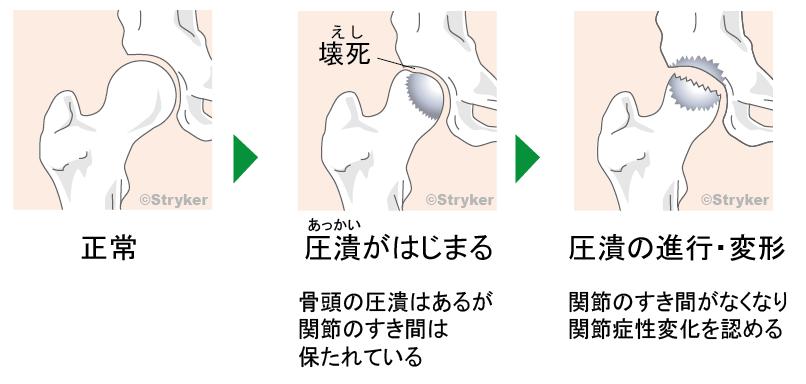 大腿骨頭壊死症2c