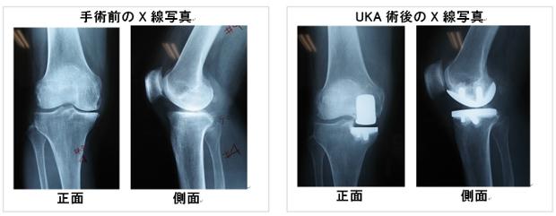 膝の関節の種類