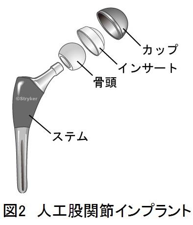 インプラント大骨頭c
