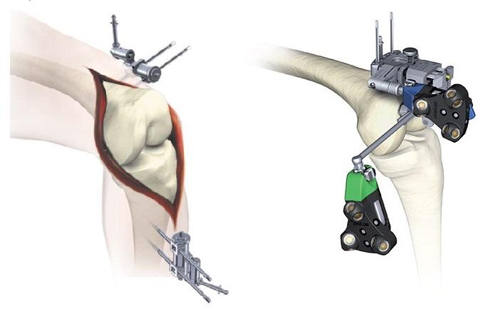 左:皮膚の上からピンを打つタイプ 右:骨に直接ピンを打つタイプ