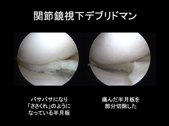 手術 損傷 デメリット 板 半月